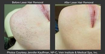 lazer hair removal cream picture 1
