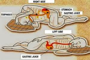 burning right side abdomen and reflux picture 7