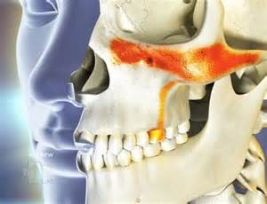 sinus infection and dental/oral pain picture 1