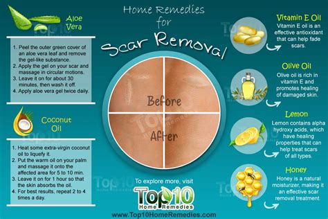 agnijith herbal cream is heal scar burn completely picture 7