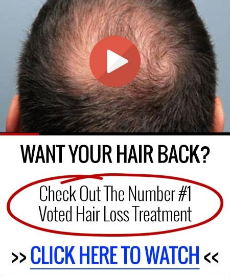 best hair loss treatments picture 14