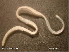 Intestinal parasite images picture 6