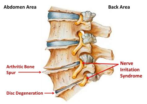 degenrative joint diease in the spine picture 7