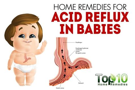 acid reflux in infants h picture 1