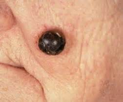 skin cancer example picture 2