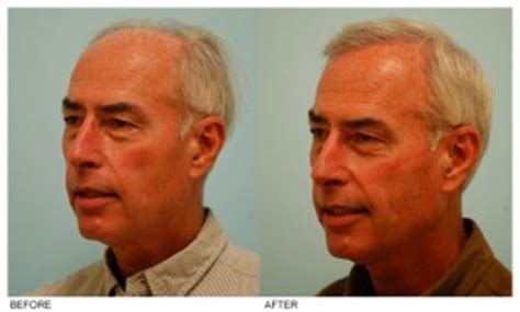 dallas and hair restoration picture 1