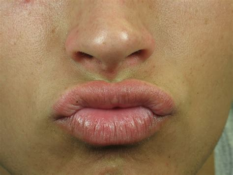 lip warts picture 1