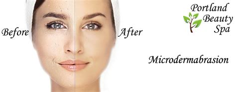 clear touch acne treatment picture 10