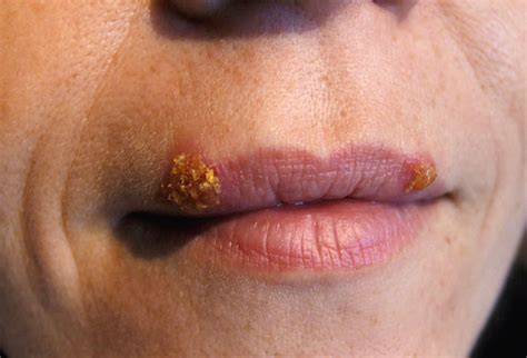 how can you spot a herpes scar picture 14