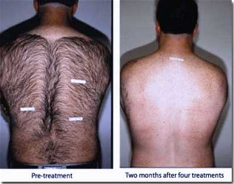 permanent home hair removal picture 3