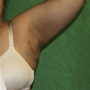 armpit waxing after breast aug picture 5