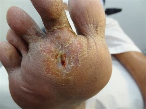 toenail fungus related to diabetes picture 2