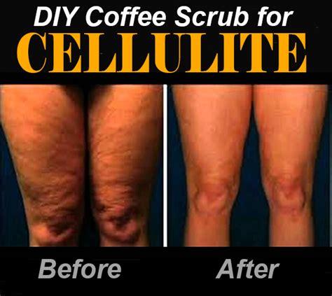 cellulite in picture 10