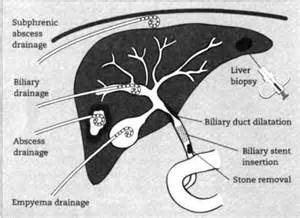interventional radiology liver biopsy picture 1
