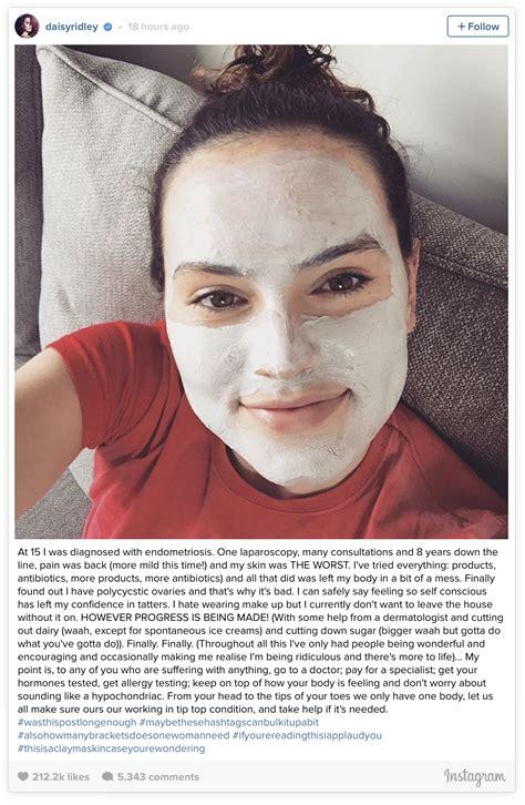 acne of the uterus picture 13