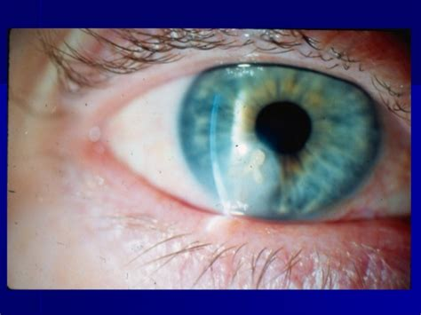 herpes in the eyes symptoms picture 7