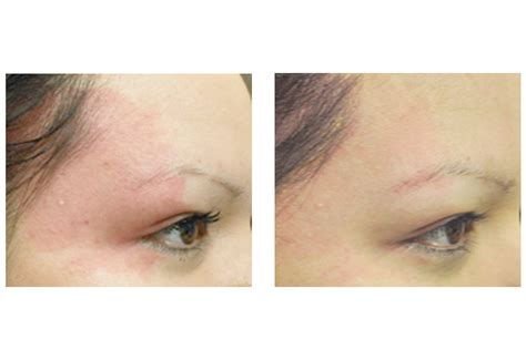 stretch mark removal in san diego picture 6