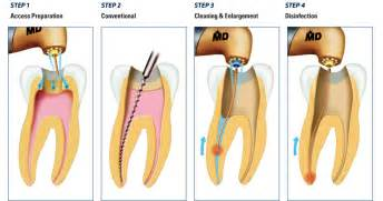 teeth rootcanel picture 7