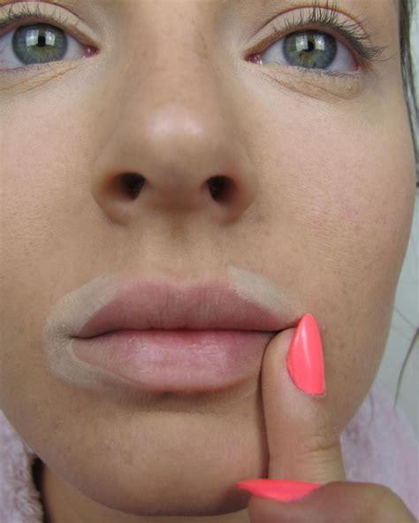 Sches in lip area picture 2