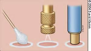 skin boils treatment picture 14