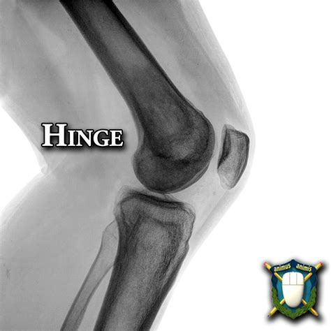hinge joint picture 2