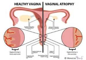 what can cause ps on the vaginal area picture 5