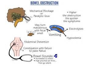 colon obstruction picture 13