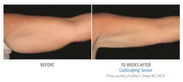 laser fat removal reviews 2015 picture 5