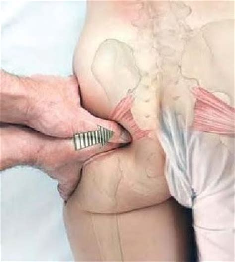 what is good to get rid of vaginal picture 7