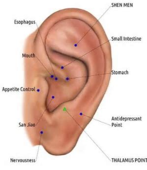 ear piercing to relieve anxiety picture 5