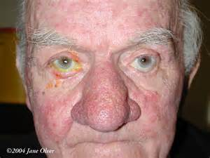 rhinophyma acne rosacea picture 1