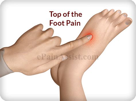 foot pain relief picture 10