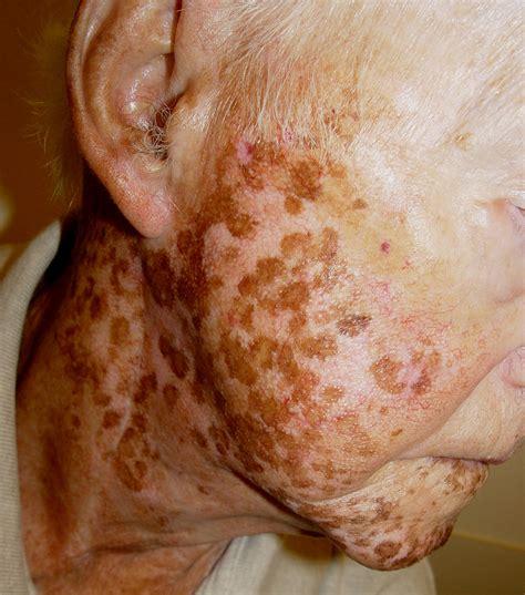 skin care for vitaligo picture 6