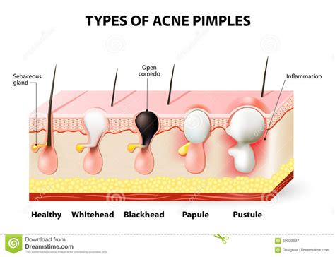 causes of cystic acne picture 7