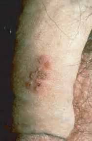herpes genitalis picture 6