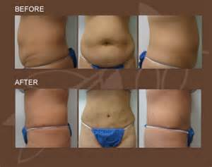 surgical weight loss center picture 13