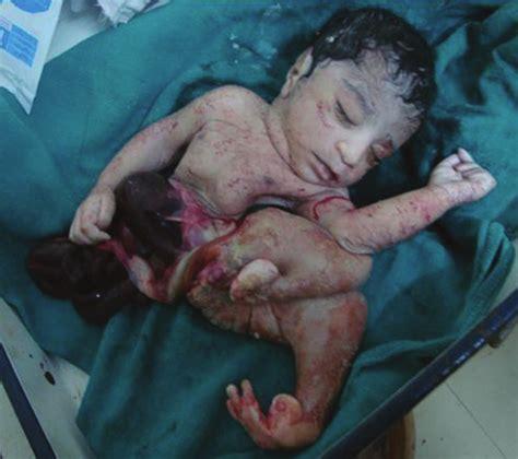 dropped colon in child birth picture 1
