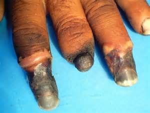 what disease cause a penis to start shedding picture 4