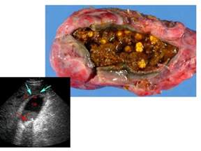 gall bladder trouble picture 17