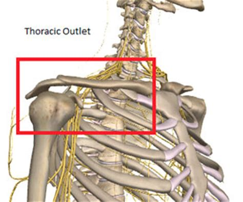 birth control and thoracic outlet syndrome picture 14
