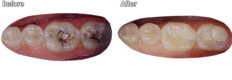filling cavities in wisdom h picture 19