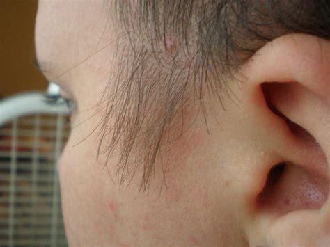testosterone underarm treatment picture 17