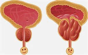 effect of lipo 6 on enlarged prostate picture 15