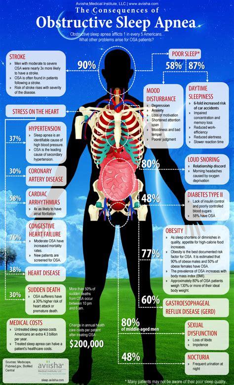 obstructive sleep apnea risk factors picture 3