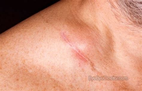 swollen lymph nodes skin rash picture 11
