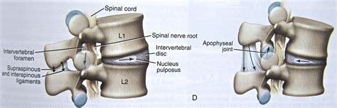 degenerative disc joint picture 11