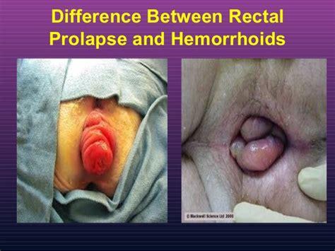 varina prolapse picture comparison normal vaginal picture picture 4