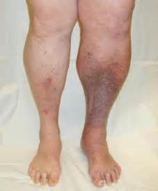 can pressure on nerves to legs cause blood clots picture 3