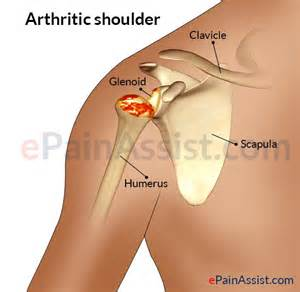 shoulder pain while colon cleansing picture 14