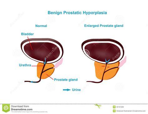 acute prostatitis picture 11